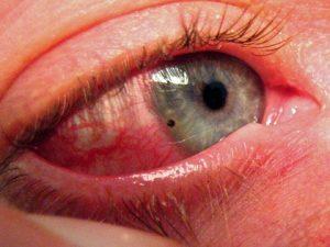 Кровоподтек в глазу от удара лечение. Лечение ушиба глаза