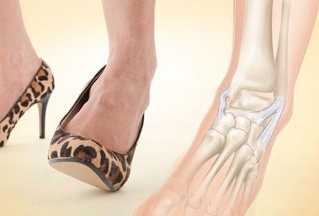 Лечение маршевого перелома маршевой стопы