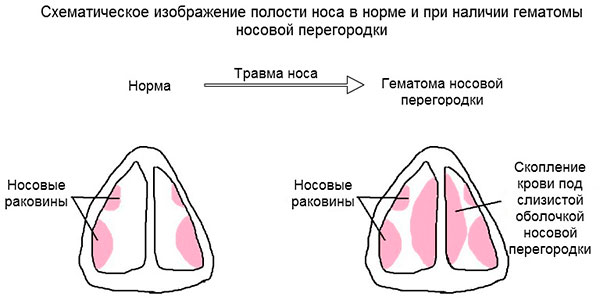 Ушиб носа у ребенка что делать